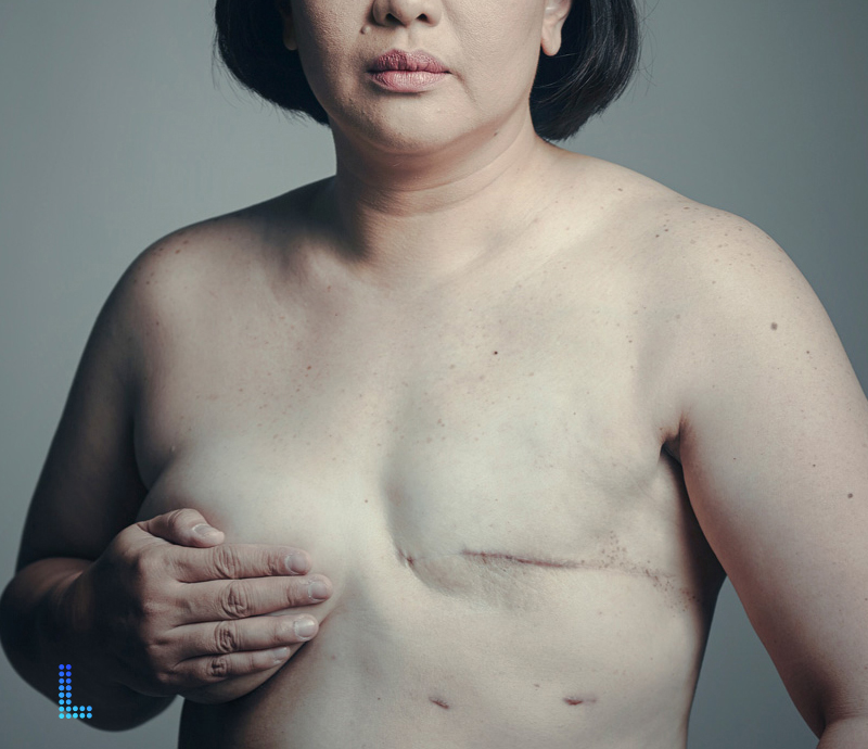 Best Breast Reconstruction  in Lahore